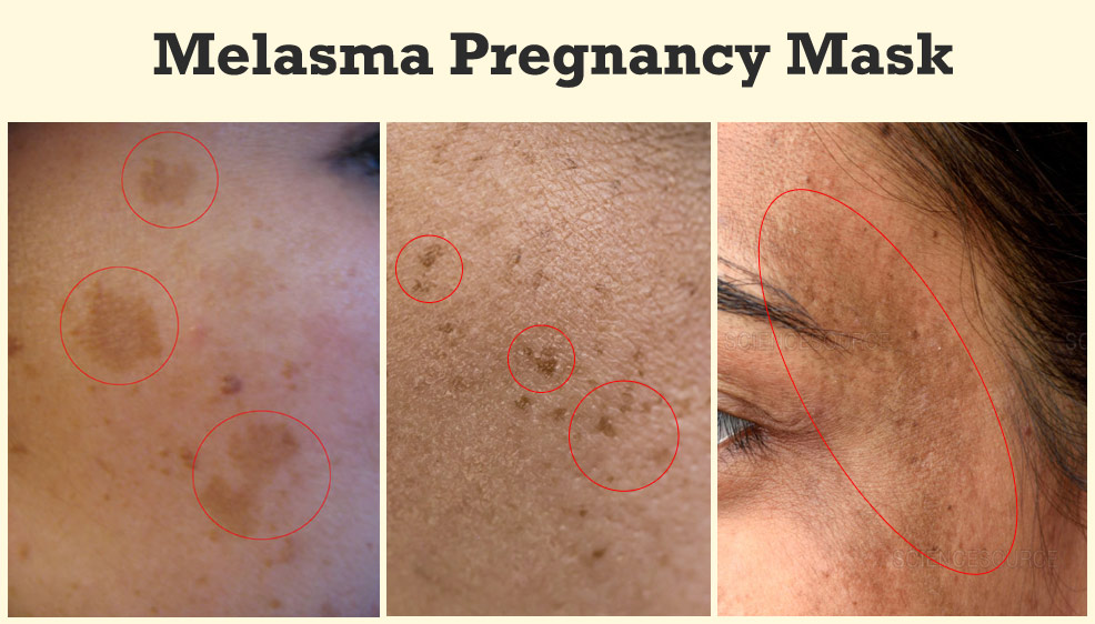 melasma pregnancy mask skin discoloration