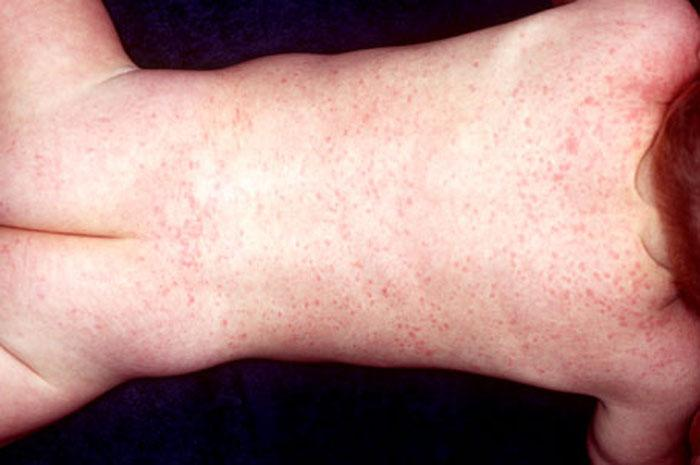Baby Rash Pictures Causes Treatments Mommyhood101