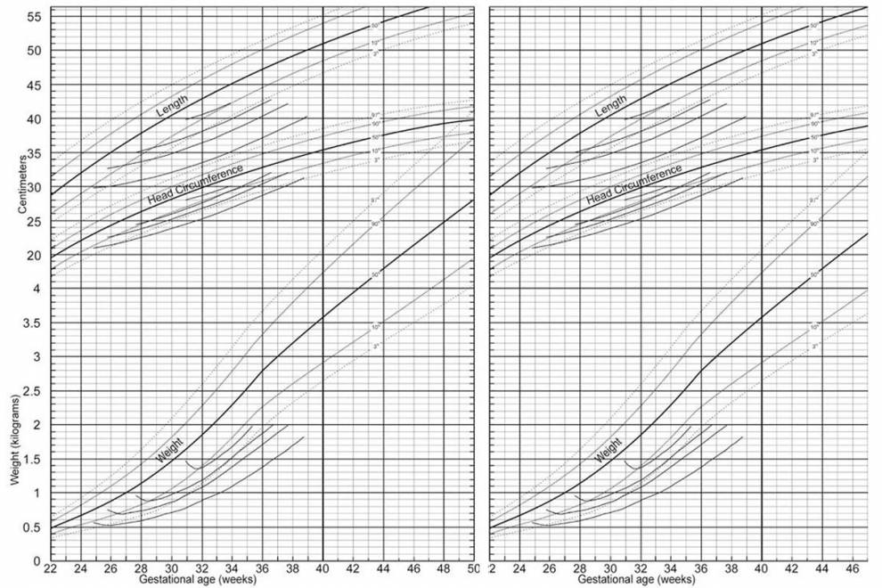 New Growth Chart for Premature Babies